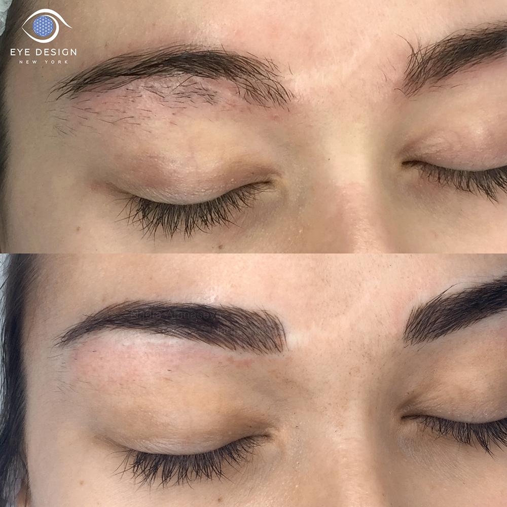 eyebrow microblading. scar eyebrow microblading e
